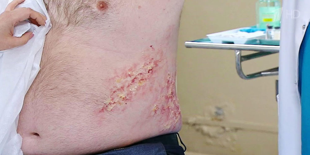 Від герпесвірусних інфекцій до раку: небезпеки герпесу