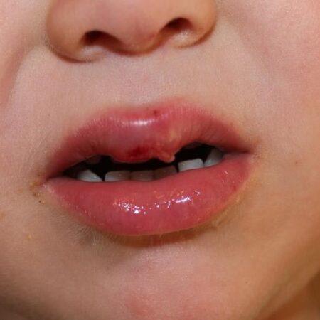 Почему герпес у детей часто появляется при простуде?